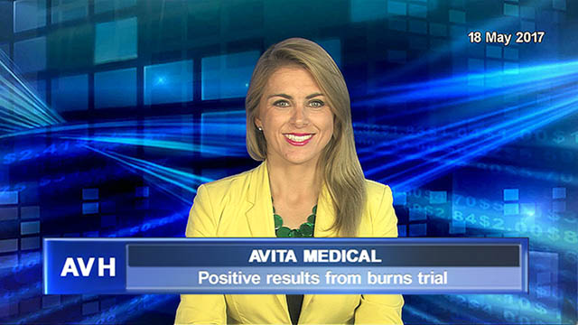 Avita Medical sees positive results from burns trial